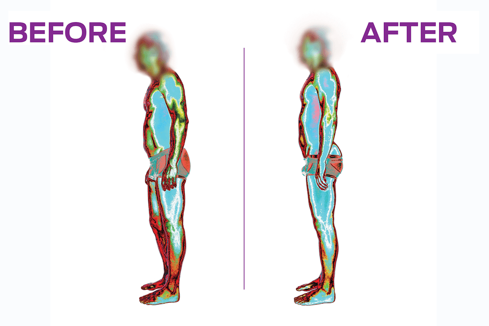 Postural Evaluation By Imaging - Cryos Technologies