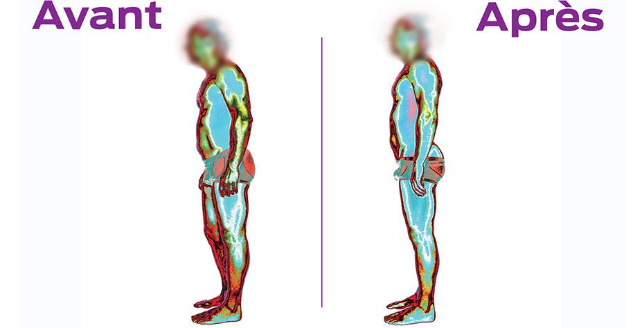 Évaluation posturale par Imagerie