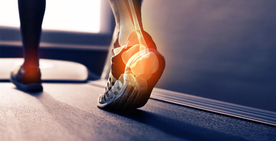 Le port d'orthèses plantaires et ses effets sur les muscles